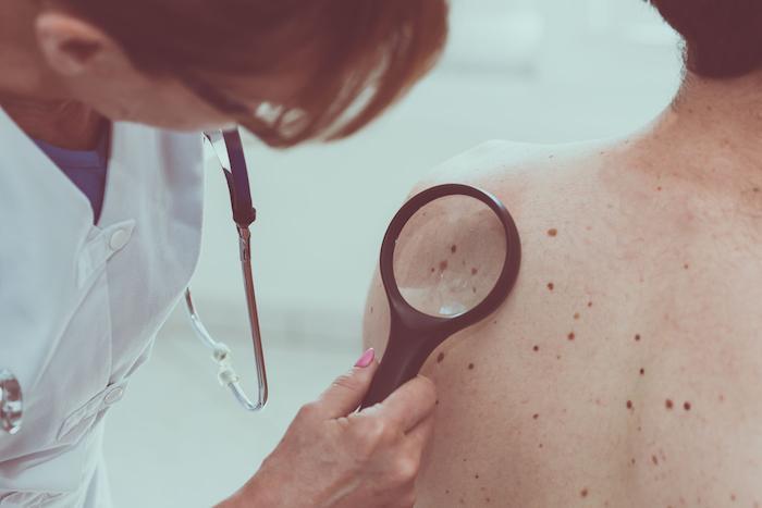 Mélanome : un vaccin anticancéreux efficace à 100% chez les souris
