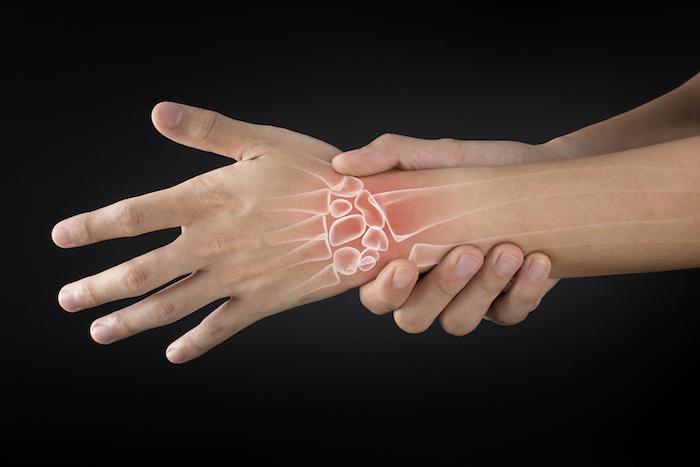 Polyarthrite rhumatoïde : l'échographie permet d'optimiser le traitement