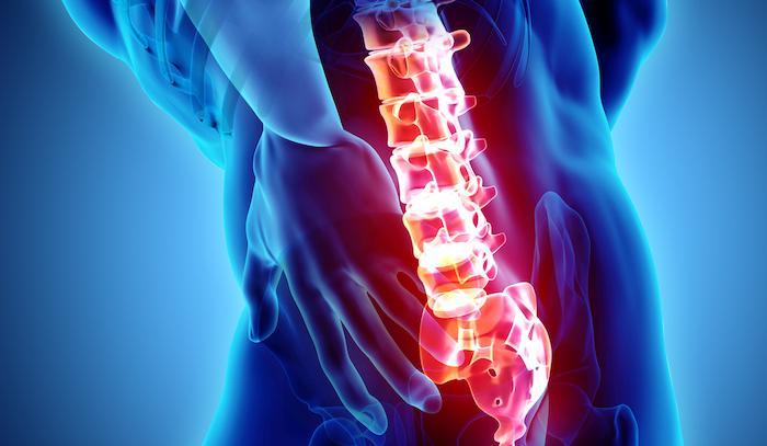 Ostéoporose : la prévention des fractures marche mieux en début de maladie