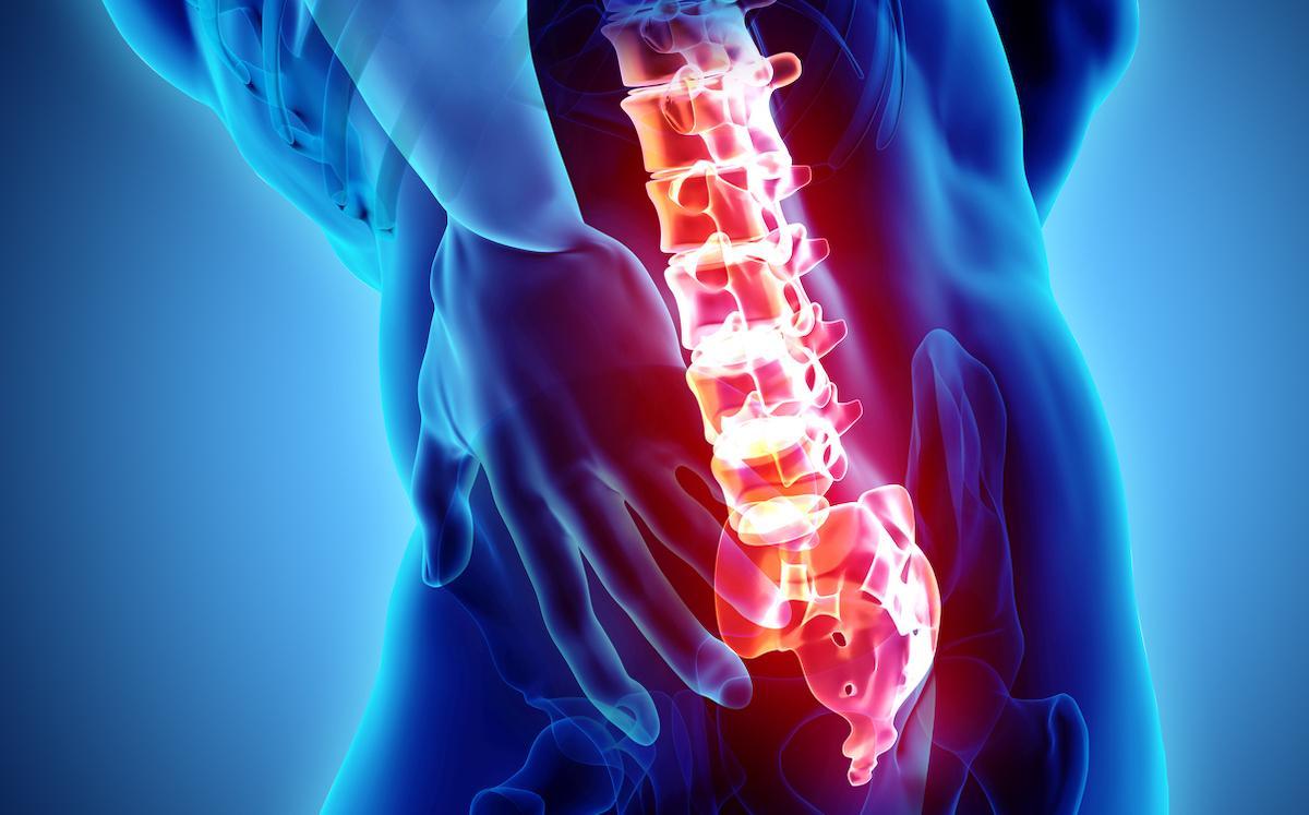 Arthrodèse vertébrale : fréquence de l'ostéoporose sur le scanner pré-opératoire