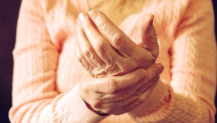 Rhumatisme psoriasique : le traitement précoce double le taux de rémission