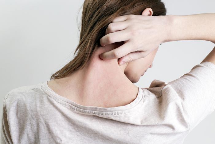 Psoriasis : une maladie de peau qui perturbe la vie de couple