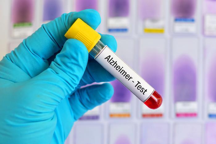 Alzheimer : un nouveau test sanguin détecte la maladie 15 à 20 ans plus tôt
