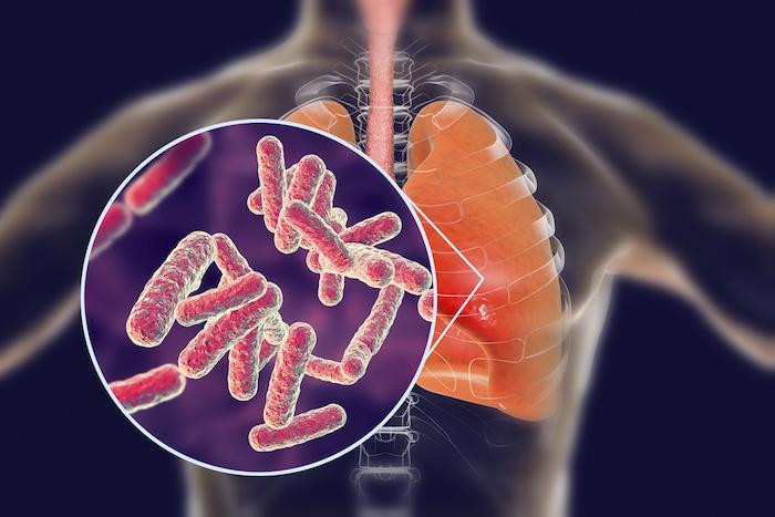 Journée mondiale : la pneumonie causée par une bactérie est la plus dangereuse pour le cœur