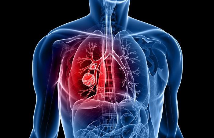 Cancer bronchique métastasé : l'immunothérapie associée à la chimiothérapie diminue de 50% le risque de progression et de décès