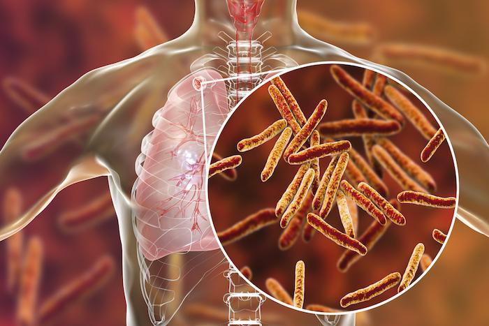 Un cas de tuberculose détecté au sein du personnel de l'hôpital à Deux