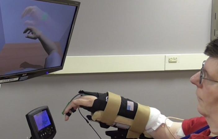 Tétraplégie : un Américain retrouve l'usage de son bras avec une neuroprothèse