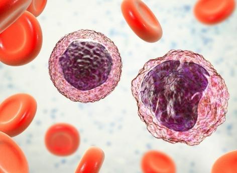 Lymphome B : un pro-oncogène identifié dans les formes à grandes cellules