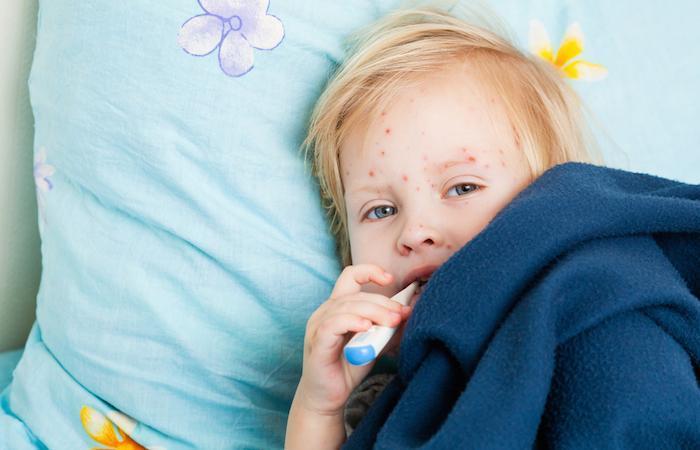 Rougeole : vaccination recommandée pour les Américains avant d'aller en Italie