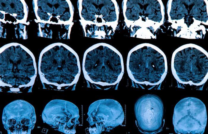 Parkinson : un score de risque de déclin cognitif