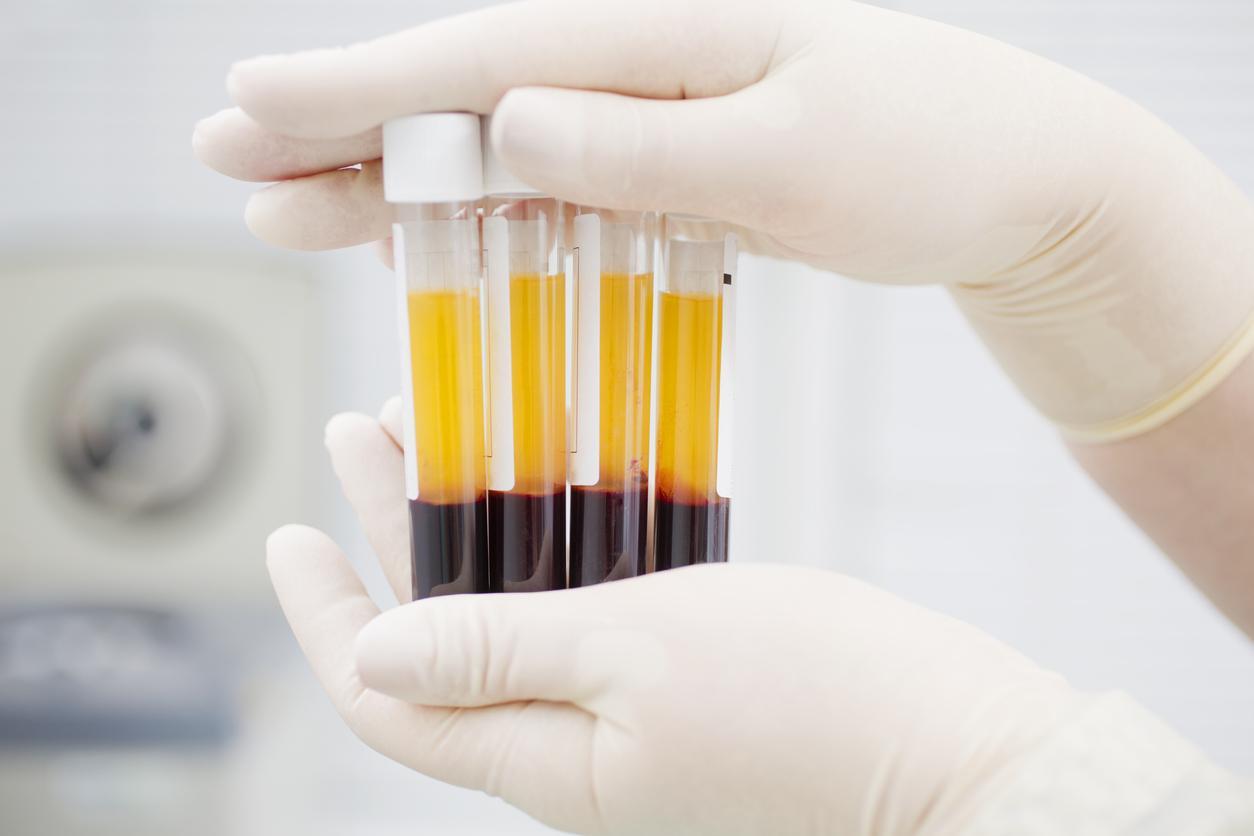 Hémophilie, réanimation : des pénuries de médicaments à prévoir jusqu'à la fin de l'année