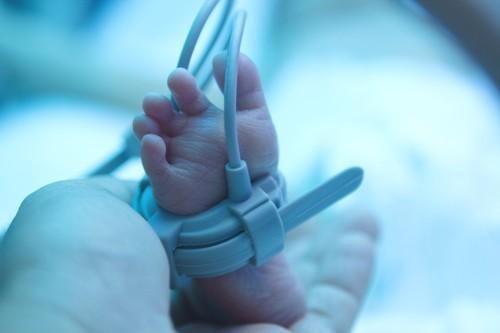 Prématurité : le petit poids de naissance associé à un risque de troubles psychologiques