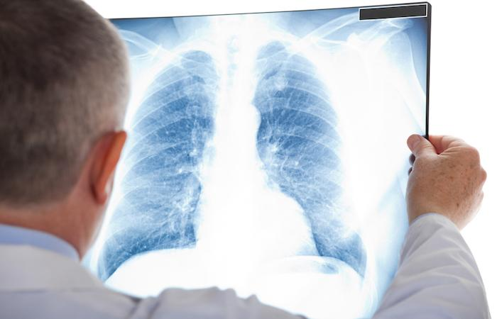 Cancer du poumon : l'immunothérapie serait plus efficace lorsqu'il existe une BPCO