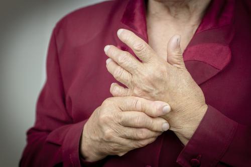 Polyarthrite rhumatoïde : prédire les rechutes lors de l'arrêt des traitements
