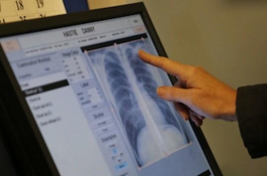 Risque tuberculeux : un scanner thoracique au moindre doute