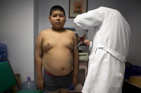 Obésité : la chirurgie bariatrique réduit les maladies cardiovasculaires ?