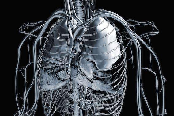 La radiothérapie stéréotaxique fait aussi bien que la chirurgie pour le traitement des métastases pulmonaires