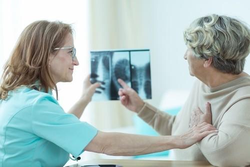 Ostéoporose: succès d'une nouvelle thérapie ciblée