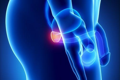 Cancer de la prostate : l'IRM multiparamétrique éviterait une biopsie sur 4