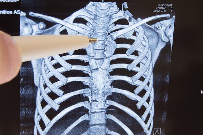 Métastases osseuses : une nouvelle cible et une nouvelle thérapie ciblée
