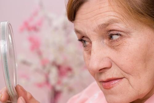 Alzheimer : la rosacée associée à une augmentation du risque