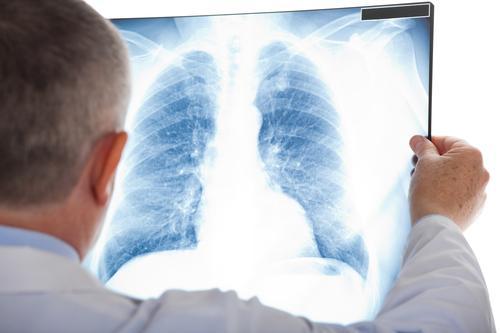 Infection respiratoire aiguë : 4 critères pour limiter l'antibiothérapie