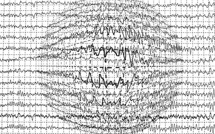 Epilepsie : les traitements modernes pas plus efficaces que les anciens