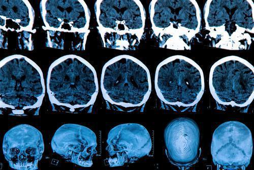 Parkinson : un dysfonctionnement cognitif annonciateur de la maladie