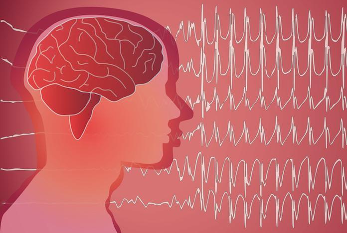 Epilepsie résistantes : un dérivé du cannabis permet de réduire les crises