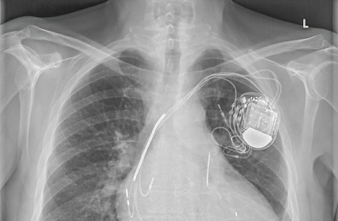 Pacemaker : Il est possible de passer une IRM sans risque