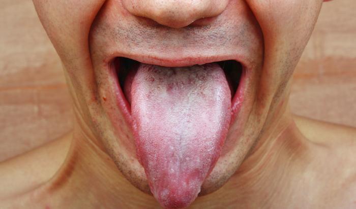 Angine : aucun effet des probiotiques ou des chewing-gums au xylitol