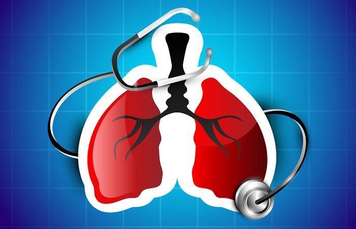 Asthme sévère : la thermoplastie confirme son intérêt dans une étude en vraie vie