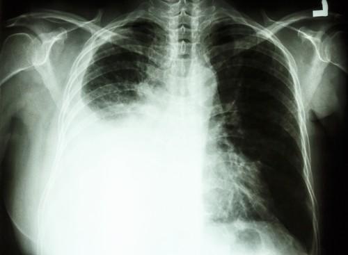 Cancer du poumon : la navigation intrabronchique électromagnétique pour un diagnostic plus précis