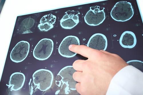Alzheimer : premier essai de phase 3 contre la protéine tau