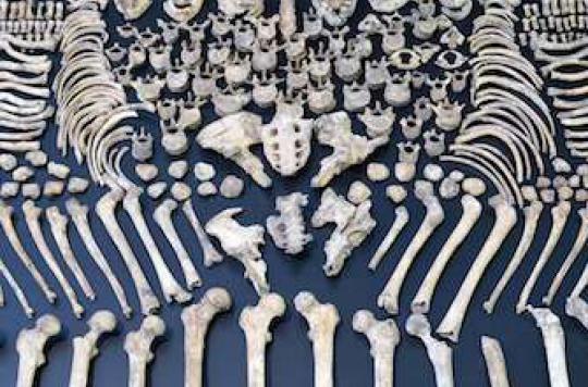 Ostéoporose : silencieuse, elle tue plus de femmes que la route
