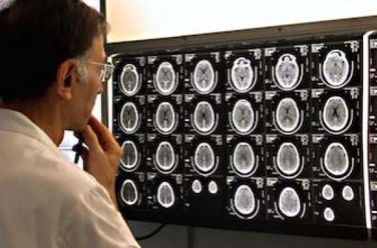 Dépression, psychoses et PTSD : le rôle croissant de l'inflammation