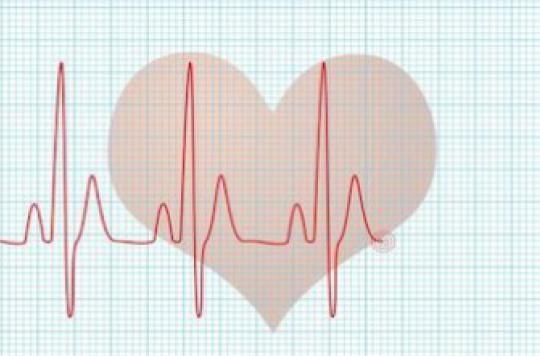 Fibrillation atriale : le diagnostic précoce sauve des vies