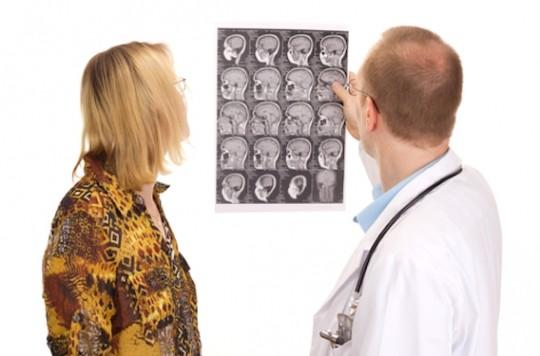 Neuromyélites et neuropathies optiques : intérêt potentiel du rituximab