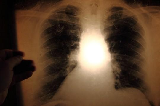 Tuberculose : l'hypoxie au centre de la formation des cavernes