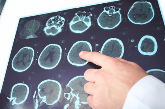 Alzheimer : rôle clé des facteurs de risque vasculaire à la cinquantaine