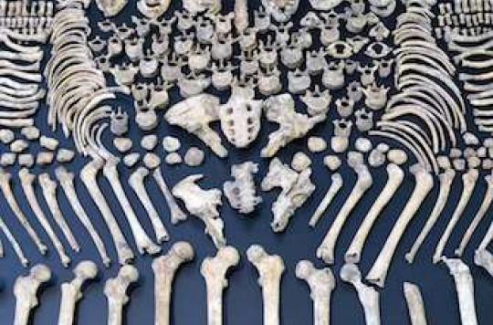 Ostéoporose : un nouveau traitement ostéoformateur à action trabéculaire et corticale