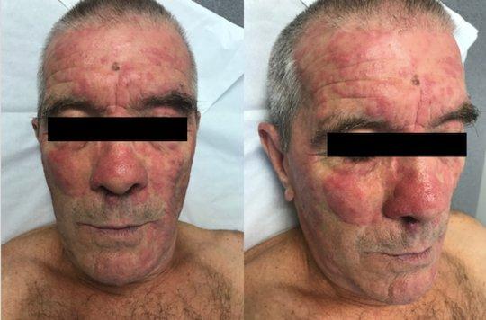 Mélanome : apparition d'un rash au cours d'une immunothérapie adjuvante