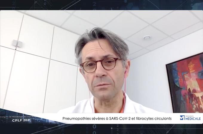Pneumopathies sévères à SARS-cov-2 et fibrocytes circulants