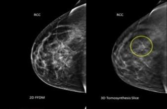cancer du sein la double mastectomie n am liore pas la survie fr quence medicale. Black Bedroom Furniture Sets. Home Design Ideas